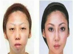 Post image for Man From China Sues His Wife For Being Ugly &amp; Wins $120,000!